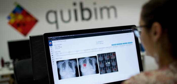 QUIBM precision platform chest x-ray