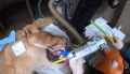 Lion becomes first animal to undergo dental surgery with NHS developed innovation SAFIRA for regional anaesthesia